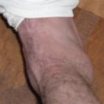 足首がソフトボールのように・・ガルシアのアンクルブレイク